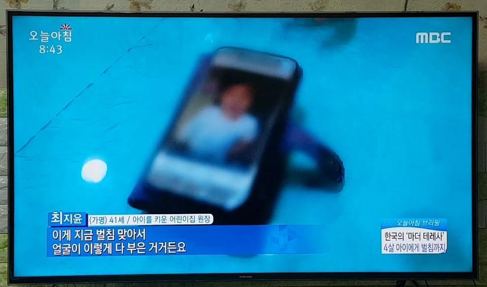 전북 봉침게이트-아동학대3.jpg